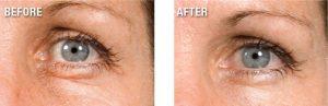 Anti-Wrinkle Anti-Oxidant Firming DMEA MSM Serum