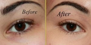 Rejuvenate eyes for a youthful look remove dark circles reduce eye puffiness