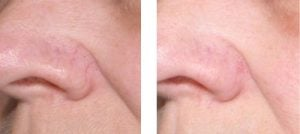 dark circles and puffy eyes rashes spider vein removal