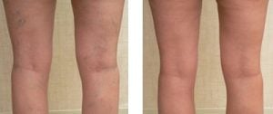 leg veins cream spinder vein creamy varicose veins